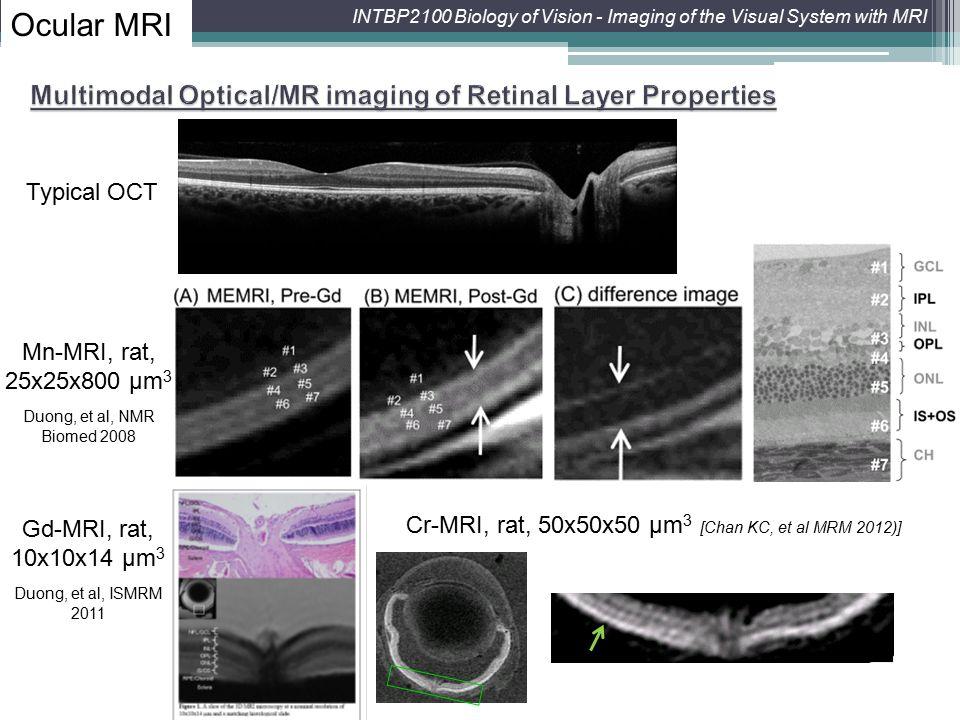 Cr-MRI, rat, 50x50x50 μm3 [Chan KC, et al MRM 2012)]